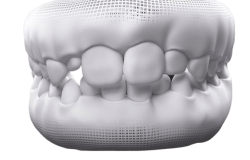 Baby_and_Permanent_Teeth-07